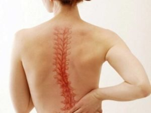 Специальные упражнения для профилактики нарушений осанки