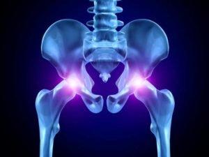 Как проводится замена тазобедренного сустава в клиниках Израиля