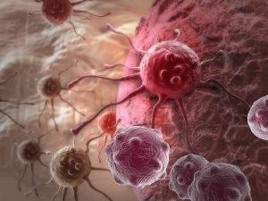 Как лечат рак желудка в Израиле