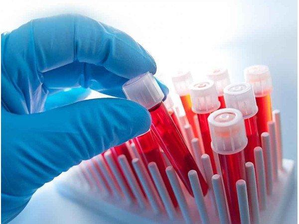 В полтаве крови цены анализ норма анализ крови на у мужчин ггт