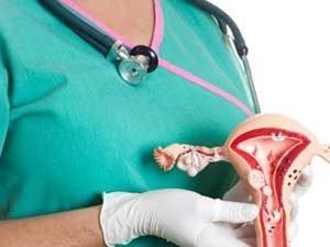 Методы лечения рака матки в Израиле
