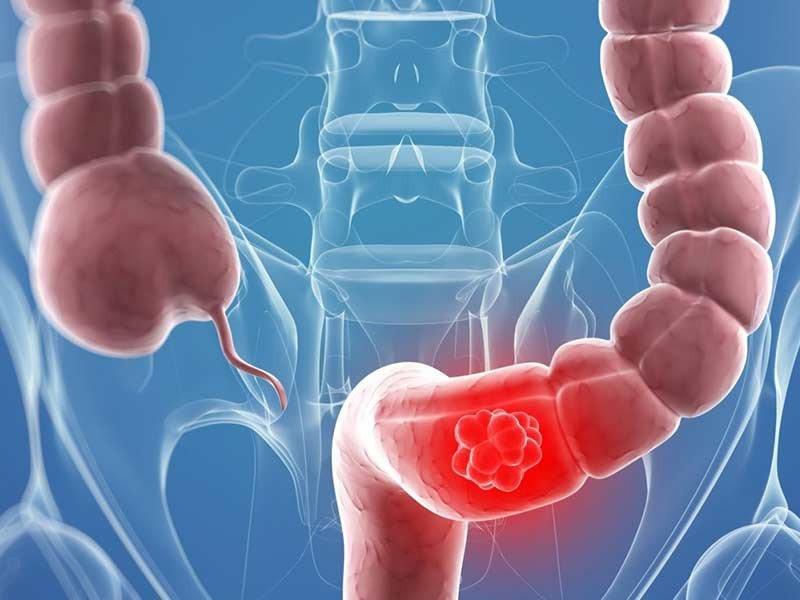 Как лечат рак толстой кишки в клиниках Израиля