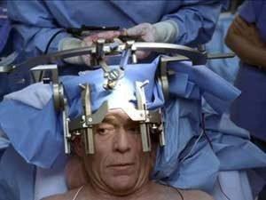 Операция по удалению опухоли головного мозга в Израиле