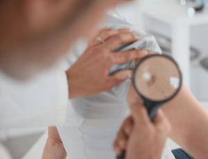 Симптомы рака кожи